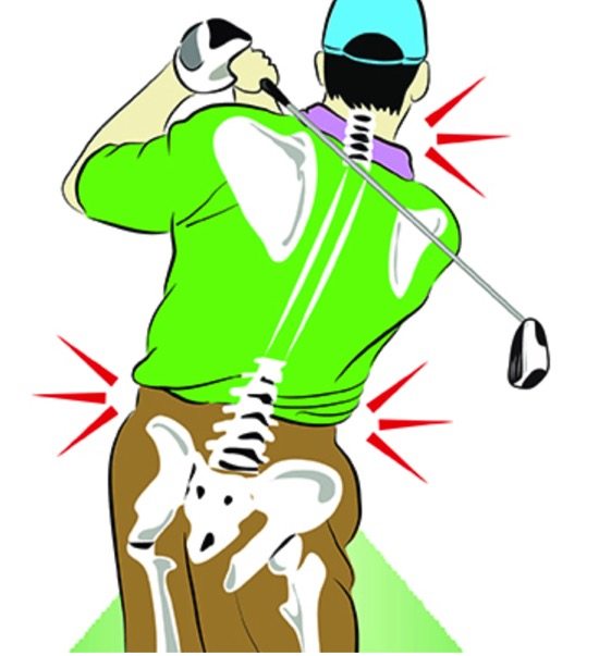 ゴルフで起こりやすいケガとその予防と対処法